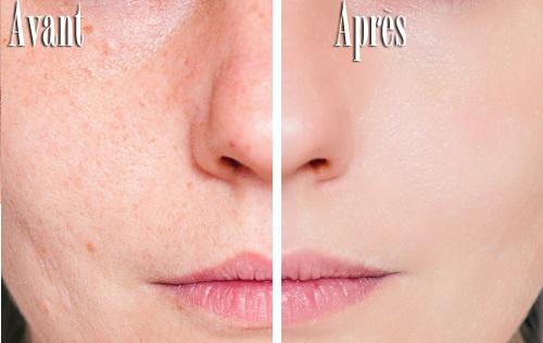 les cicatrices d'acné
