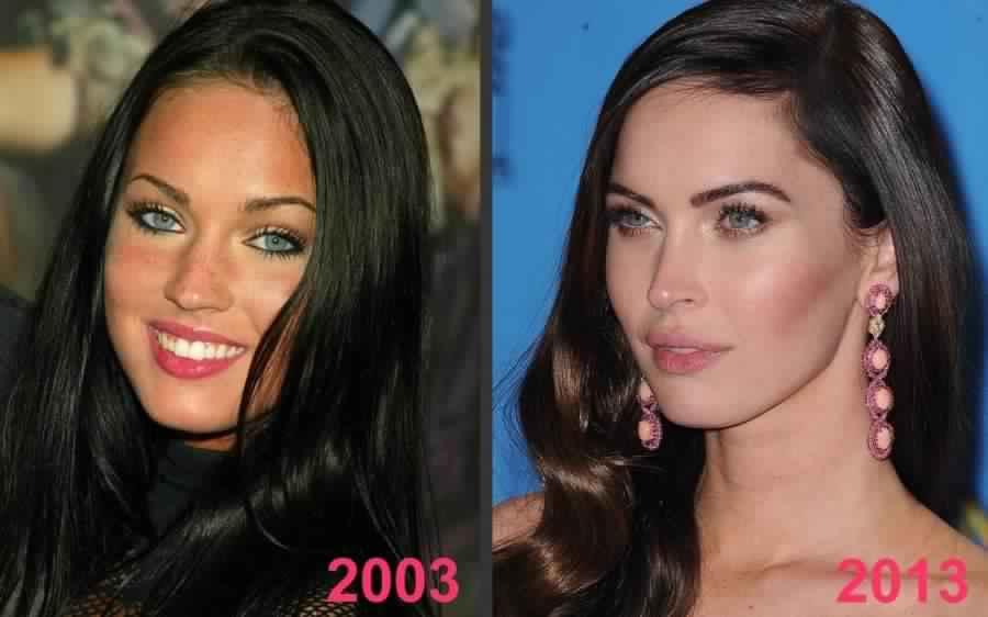Les Plus Gros Fails de la Chirurgie Esthétique chez les Stars !!!!!!!!