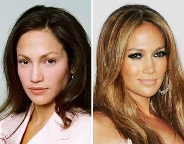 Les Plus Gros Fails de la Chirurgie Esthétique chez les Stars !!!!!