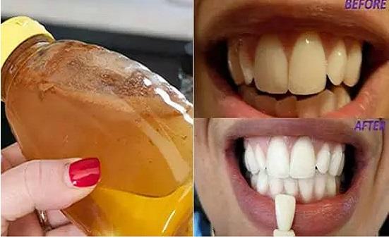 dent blanche vinaigre