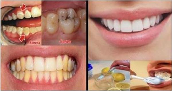 dentifrice contre les caries