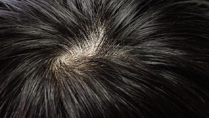 appliquez cette huile sur vos cheveux pour liminer les pellicules et la perte de cheveux et. Black Bedroom Furniture Sets. Home Design Ideas